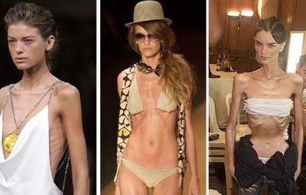 modelle-anoressiche